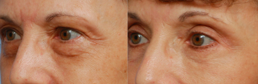 Annapolis Eyelid Surgery Before & After
