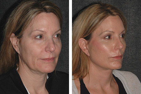 Annapolis Facelift Before & After Photo