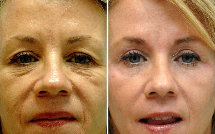 Non-surgical Eyelid Rejuvenation Annapolis Md