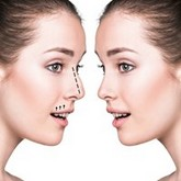 Nose plastic surgery (rhinoplasty)